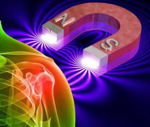 Terapia Magnética
